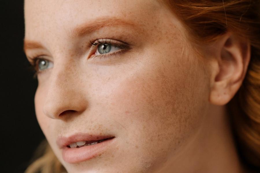 Hiperpigmentacija kože-uzroci i rešenja